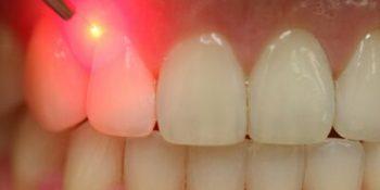 درمان با لیزر در دندانپزشکی چیست؟